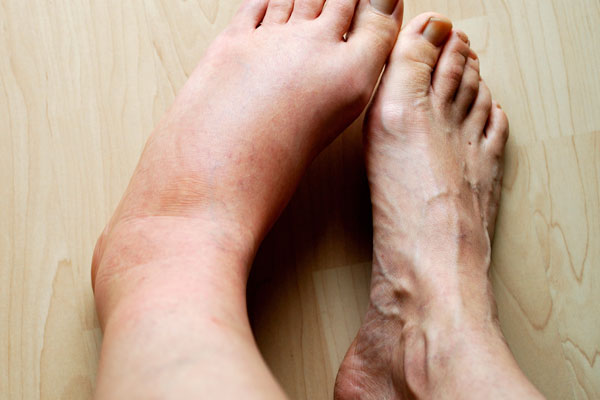 unhealthy heart signs - swollen legs and feet