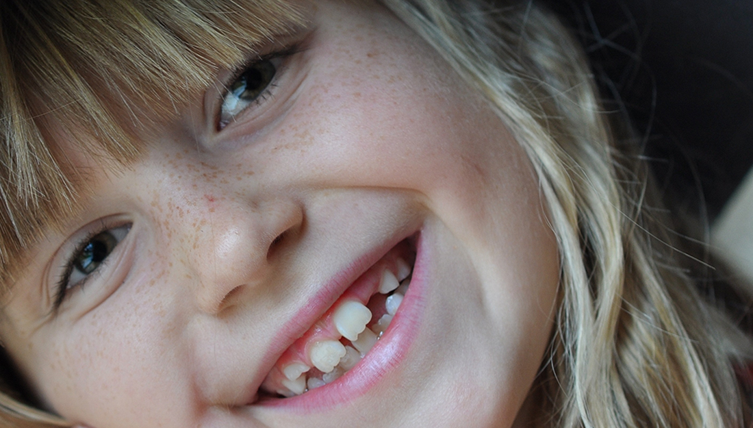 The mechanisms of teeth and bone formation may hint at ways to repair them