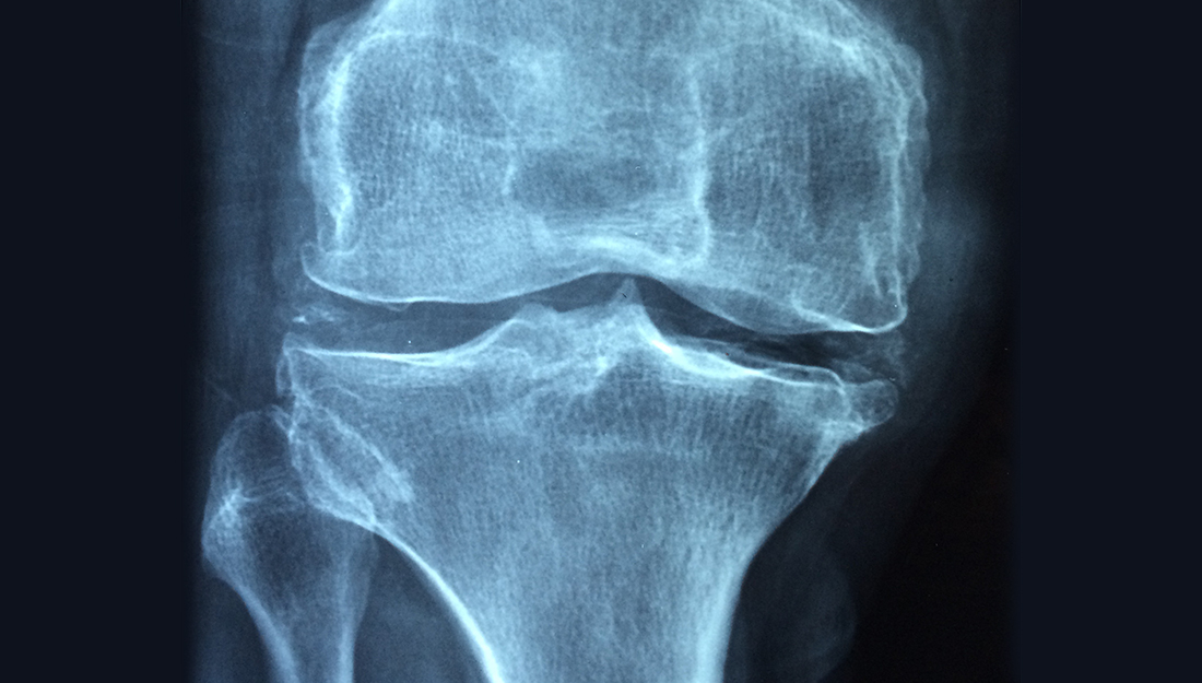 Osteoarthritis is a common condition, but the best management is an active lifestyle