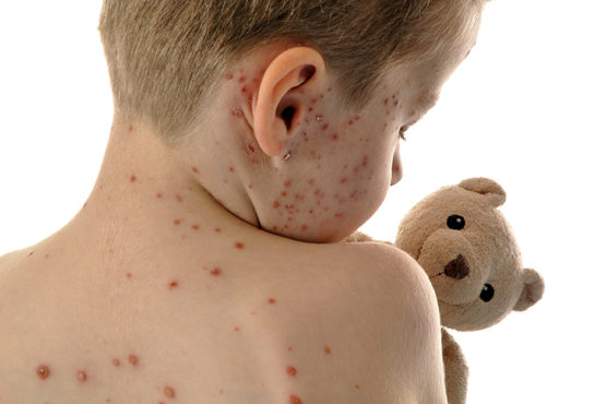 Child with measles holds a teddy bear - measles vaccination
