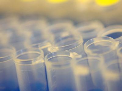 vials lined up together